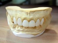 仮歯と模型写真