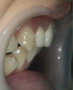 出っ歯10