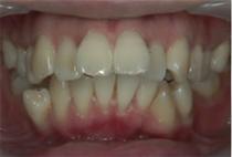 出っ歯11
