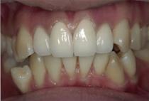 出っ歯12