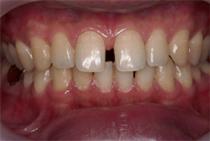 すきっ歯1