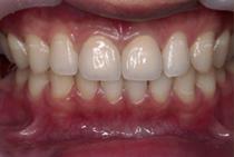 すきっ歯2