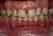 すきっ歯3