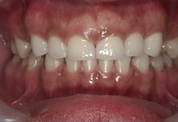 すきっ歯4