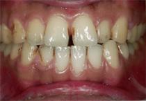 すきっ歯5