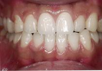 すきっ歯6